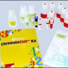 Novus #NBP1-71709 Chromata ChIP Kit (NBP1-71709) ( 25 Immunoprecipitations)